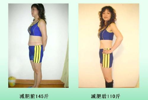 減肥案例一