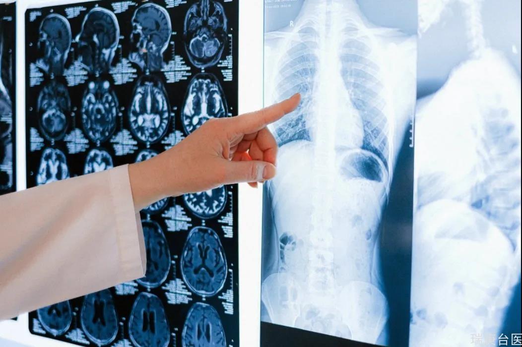【臺灣長庚醫院】給生命一個重生的機會-肺臟移植
